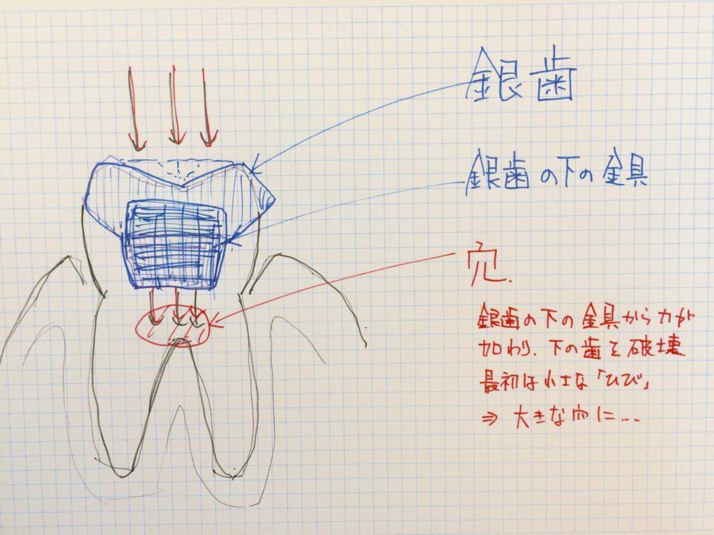 インプラント 虫歯の構造
