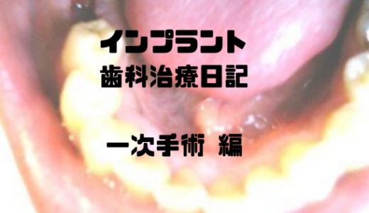 インプラント歯科治療日記(写真体験記) -インプラント一次手術編