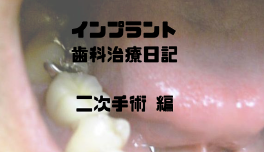 インプラント歯科治療日記(写真体験記) -インプラント二次手術編