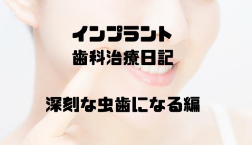 インプラント歯科治療日記 -深刻な虫歯になる編